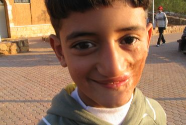 Matching prosthetic eye lights up the face of wounded Iraqi boy